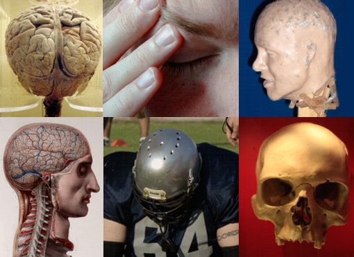 Concussion Collage